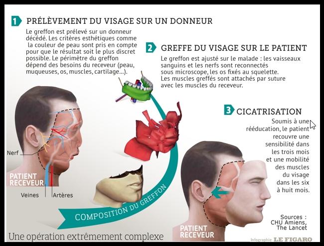 面部移植是一项非常复杂的手术。(费加罗报截图)